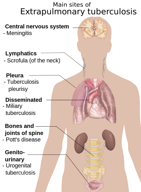 home treatment on tuberculosis