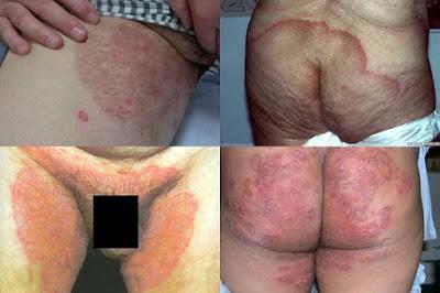obat tradisional mengatasi gatal selangkangan dan pantat