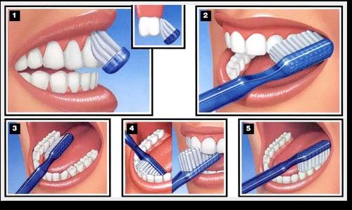 comment faut il se brosser les dents
