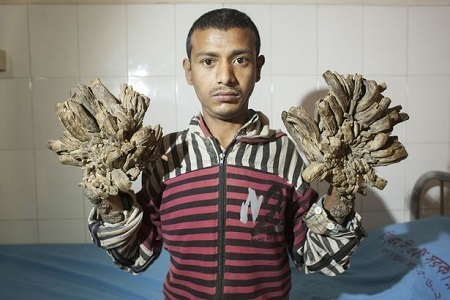 Man Whose Hands Look Like Tree Branches Undergoes Complex Surgery (Photos)
