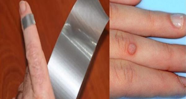 Remove Warts Using Duct Tape