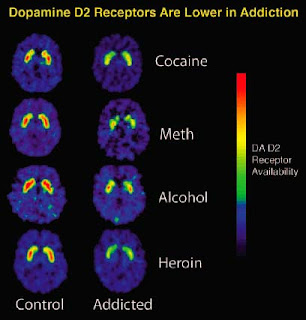 DOPAMINE RECEPTOR AVAILABILITY | DEJAR LAS DROGAS VALENCIA