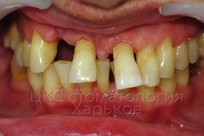 зубы подлежащие удалению