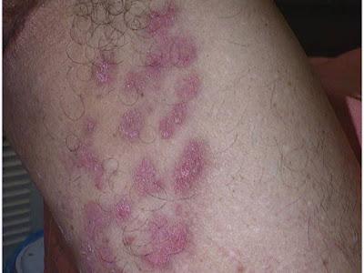 Obat Gatal Selangkangan Dan Pantat Yg Menghitam Paling Ampuh
