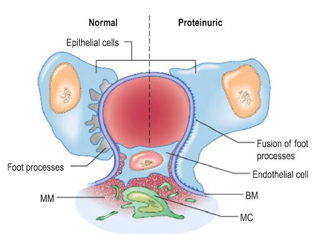 Normal vs Abnormal Podocyte
