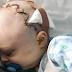 (ViraL) Ibu Panik Lihat Kepala Anak Semakin Mengembung, 4 Doktor Pakar Sahkan Bayi ini 'Berkawan' dgn Kematian