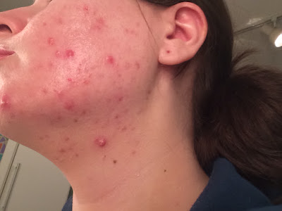 My Accutane (Clarus) Story with Before and After Photos