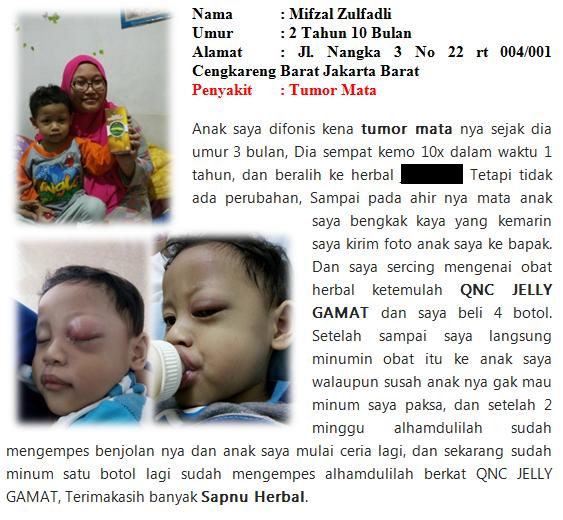 Obat Tumor Ganas utk Semua Usia paling Ampuh No.1 Di Indonesia