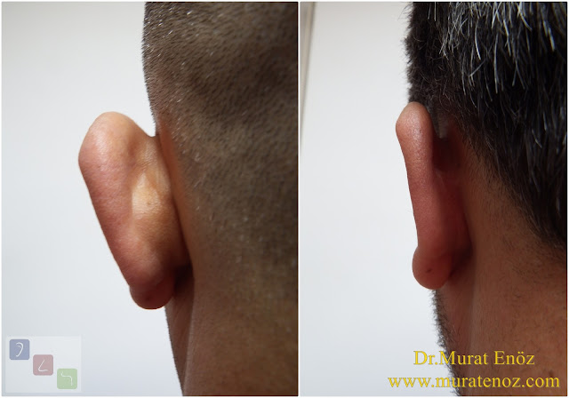 Before and After Photos for Ear Plastic Surgery in Istanbul, Turkey - Ear Plastic Surgery - Protruding Ear Surgery in Istanbul - Modified Technique - Conchomastoid Technique - Otoplasty Operation in Istanbul - Otoplasty Operation in Turkey