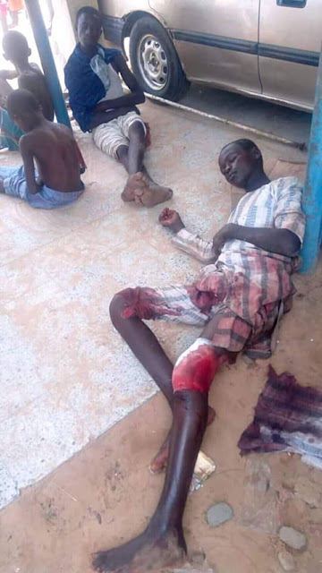 Graphic photos of injured victims after the gunfire attack in Zamfara
