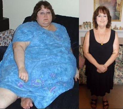 Weight loss, What are your thoughts on this image ?