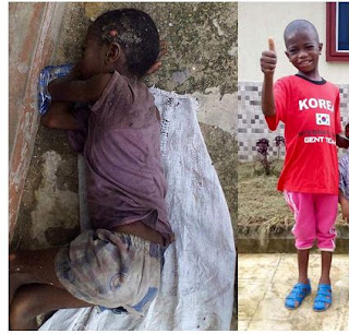 See Before & After Photos Of Akwa Ibom Boy Abandoned To Die For Being A 'Wizard'