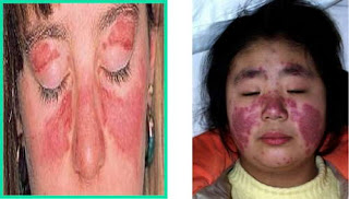 A lupus rash is also known as malar rash picture