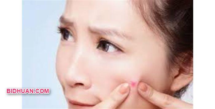 manfaat serum vitamin c untuk kulit jerawat