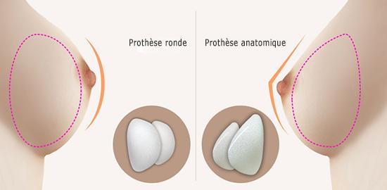 prothese ronde tunisie vs anatomique
