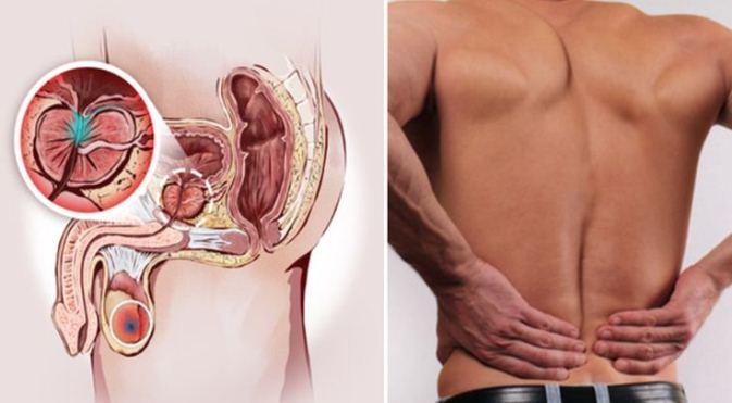 Carcinom prostata