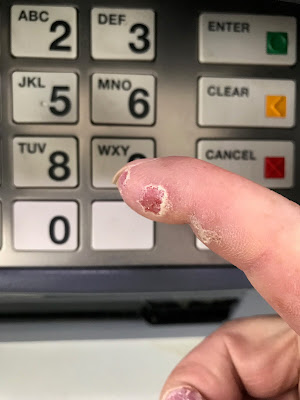 button pushing hurts ulcerated fingers so banking at ATM sucks