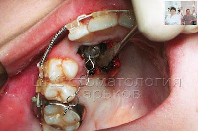Приклеили брекет к ретинированному зубу