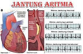aritmia-www.healthnote25.com