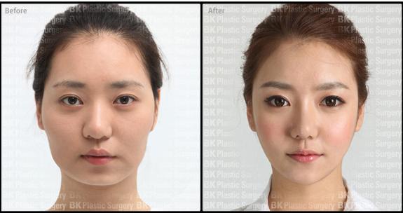 Bk Plastic Surgery Bk Plastic Surgery Revisional Nose