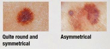 Metode Pengecekan Kanker Kulit Melanoma ABCDE - Pasien Sehat