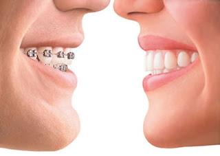Các lưu ý cần nhớ - bạn sẽ có quá trình niềng răng tốt hơn