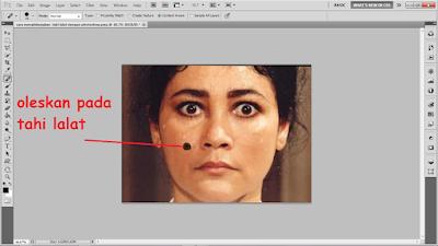Cara Menghilangkan Tahi Lalat Dengan Photoshop
