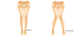 Postural Deformities - Scoliosis, Kyphosis, Lordosis, Knock knees, Flat foot