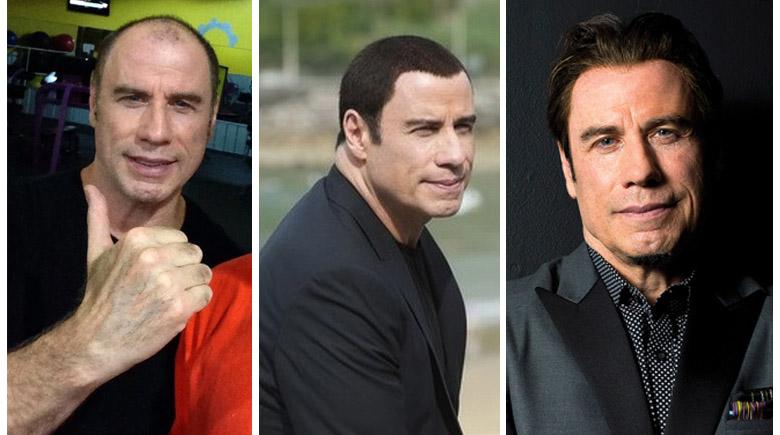 Alopecia, injerto y resultado John Travolta