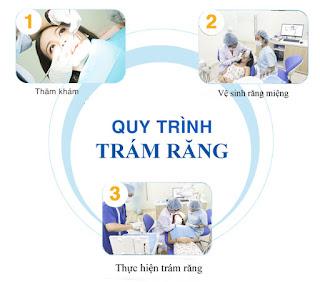 Quy trình trám răng sâu chuẩn tại Nha khoa KIM