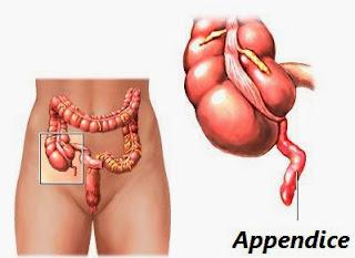 cours infirmier appendicite
