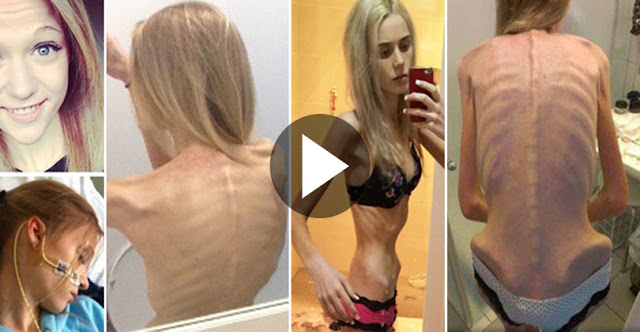 17 Year Teenager Starved Herself And Almost Dies Trying To Become Beautiful!