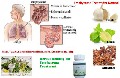 Emphysema Herbal Treatment : Possible Simple Cure for Emphysema