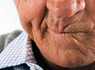 Penyakit Stroke Ringan