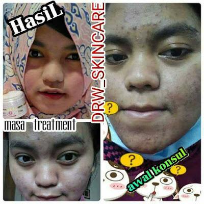 Paket acne Cream Drw Skincare