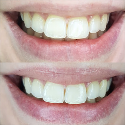 Misfit Cosmetics Activated Charcoal Teeth Whitening Powder before and after