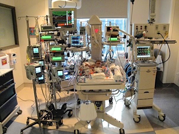 In the NICU four days after meconium aspiration syndrome