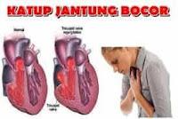 disfungsi klep jantung bocor