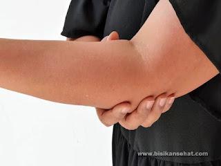 Cara Alami Mengetahui Gejala Asam Urat - www.bisikansehat.com