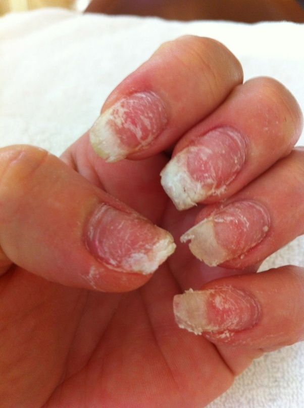 Plastic And These Salons Are Using That Kind Of Strength On Your Natural Nails Oo My Ruined From Acrylics Yes S They