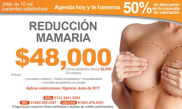 reduccion mamaria reduccion de senos mastopexia cirugia ambulatoria guadalajara costo precio
