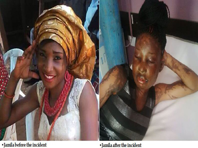 26-year-old Jamila Musa Bathed With Acid In Abuja For Dating A Married Man (See Photos)