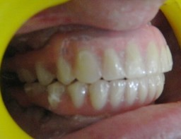 Fixed permanent teeth in 3 Days with Implants in India
