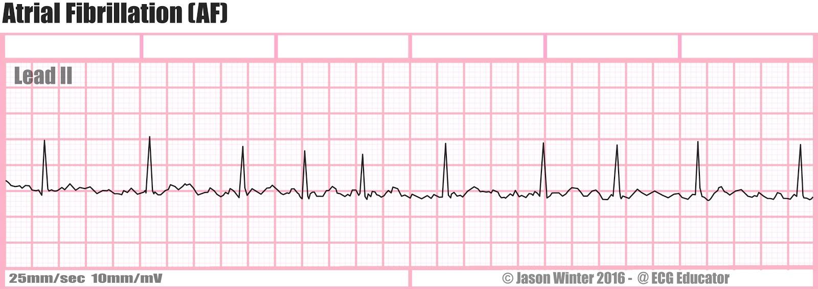 ECG Educator Blog : Atrial Rhythms