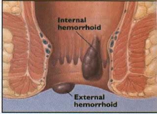 Penyakit Ambeien Atau Hemoroid Berdarah Apa Obatnya?, Bagaimana Mengobati Wasir Yang Parah Tanpa Operasi?, Cara Alami Mengobati Ambeien atau Wasir
