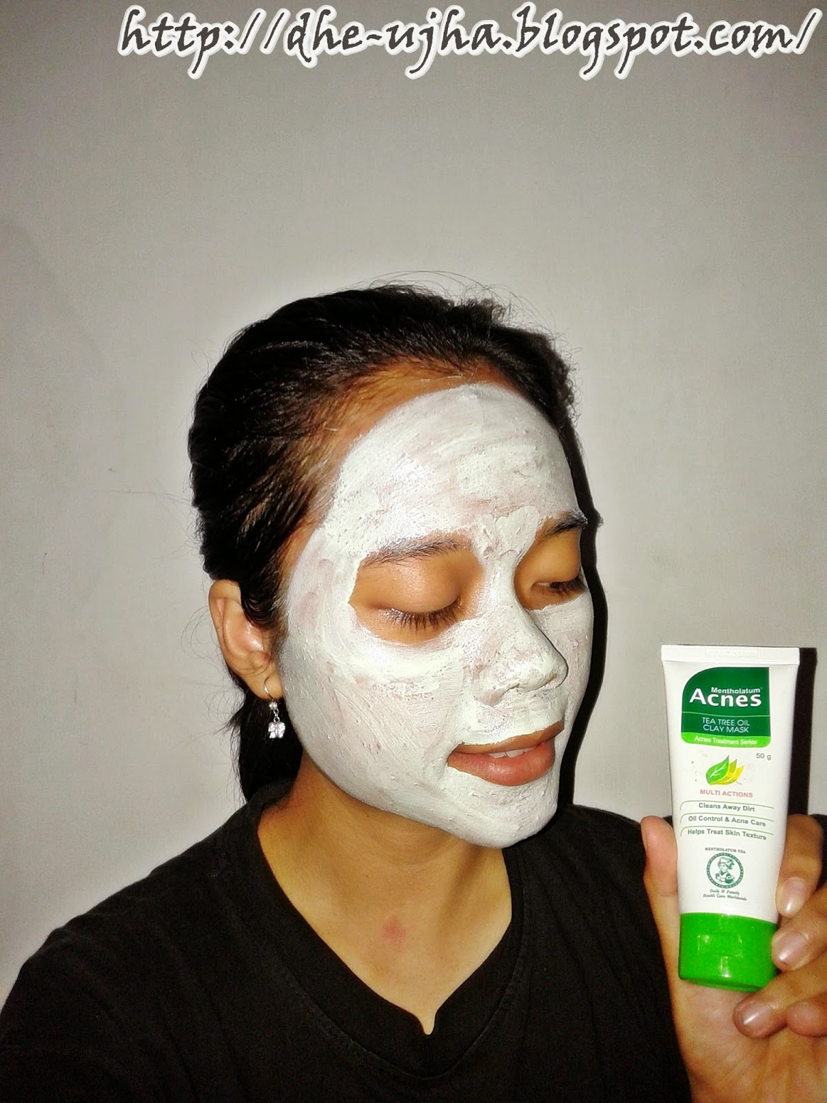 acnes tree tea oil ketika dipakai