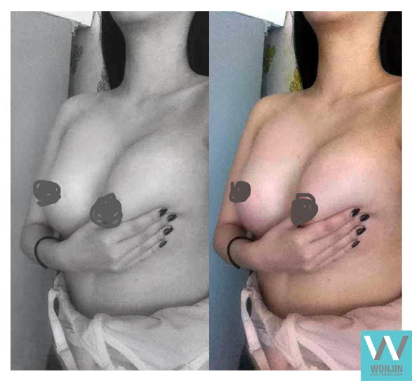 짱이뻐! - My Experience Of Having Breast Augmentation Plastic Surgery in Korea