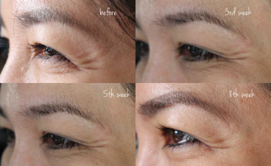 before after photos trio eye wrinkle correcting laser