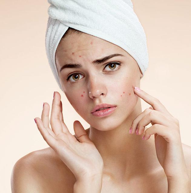 وصفات للتخلص من حبوب الوجه بسرعة