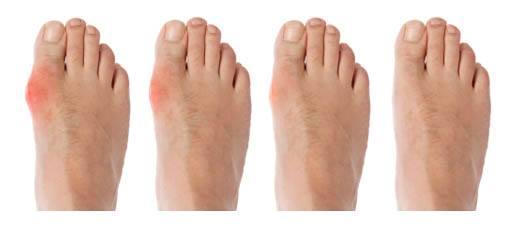 Rawatan Gout guna Pro Kas